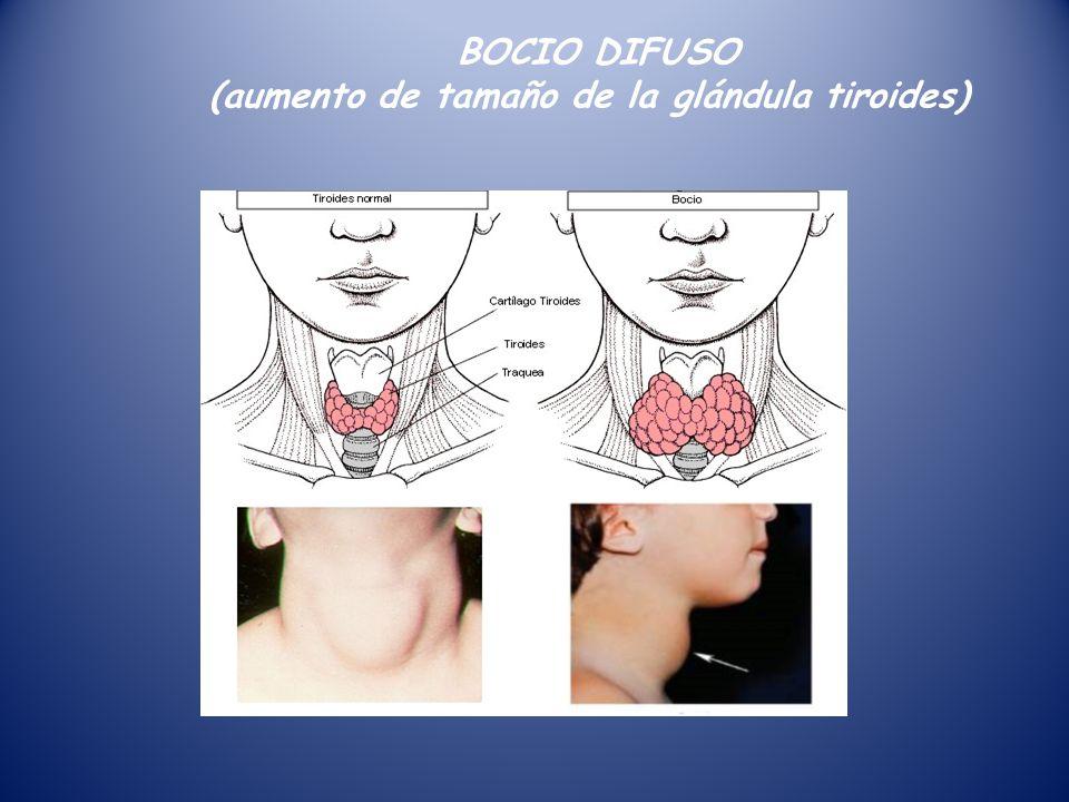 CONOCIENDO LA GLANDULA TIROIDES - ppt video online descargar