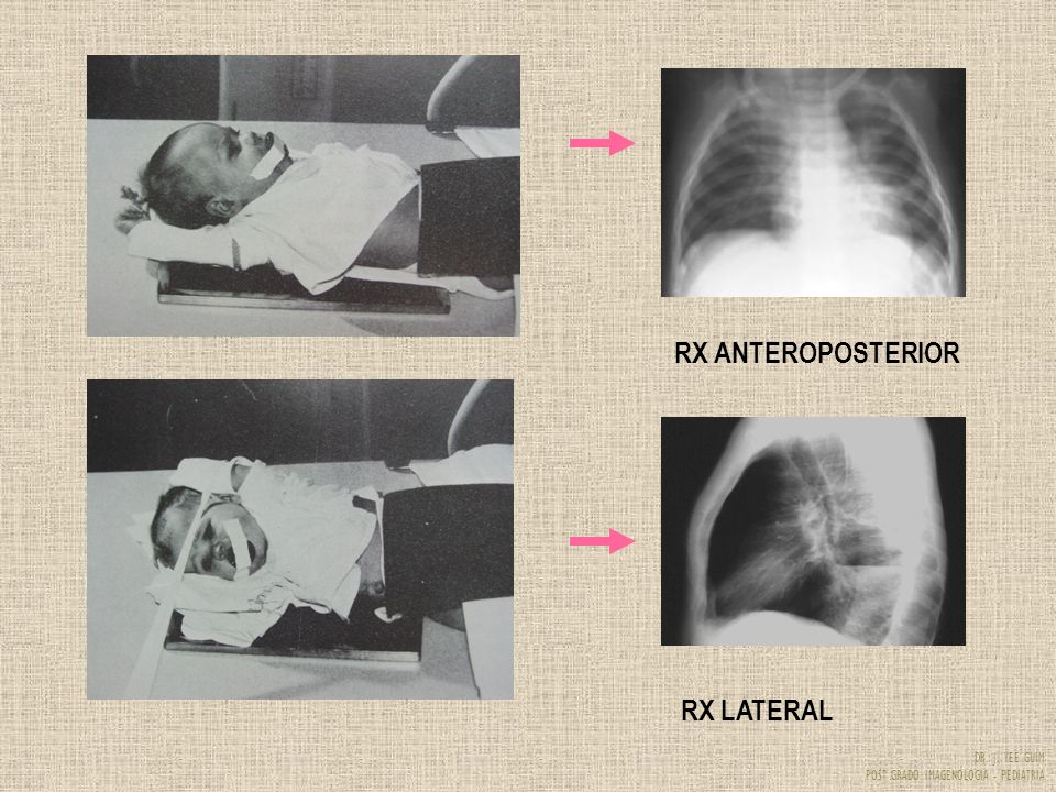RX ANTEROPOSTERIOR RX LATERAL