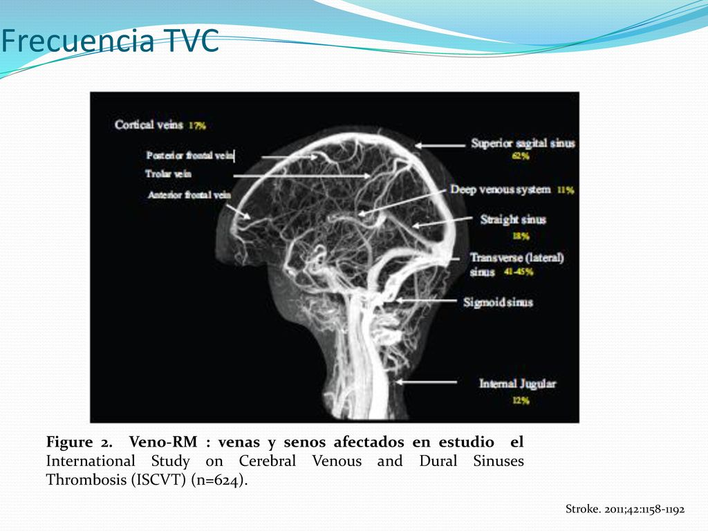 Trombosis Venosa Cerebral - ppt descargar