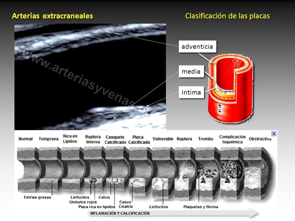Doppler Arterias extracraneales Anatomía - ppt video online descargar