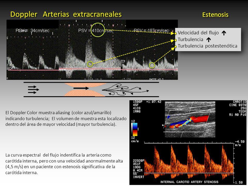 Excepcional Anatomía Ultrasonido Carotídeo Ornamento - Imágenes de ...