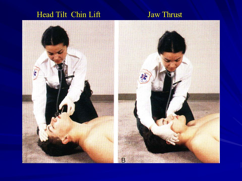 Head Tilt Chin Lift Jaw Thrust