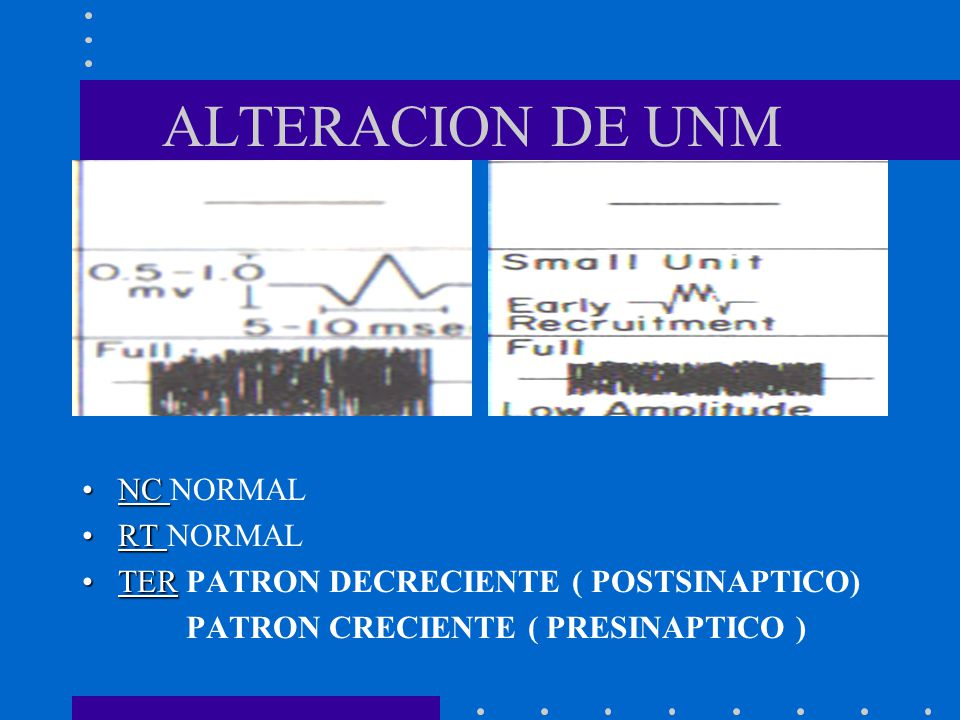 ALTERACION DE UNM NC NORMAL RT NORMAL