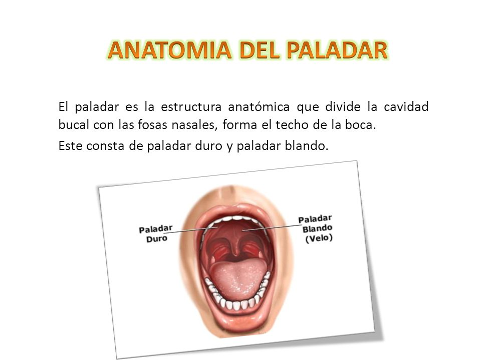 LABIO FISURADO Y PALADAR HENDIDO - ppt video online descargar