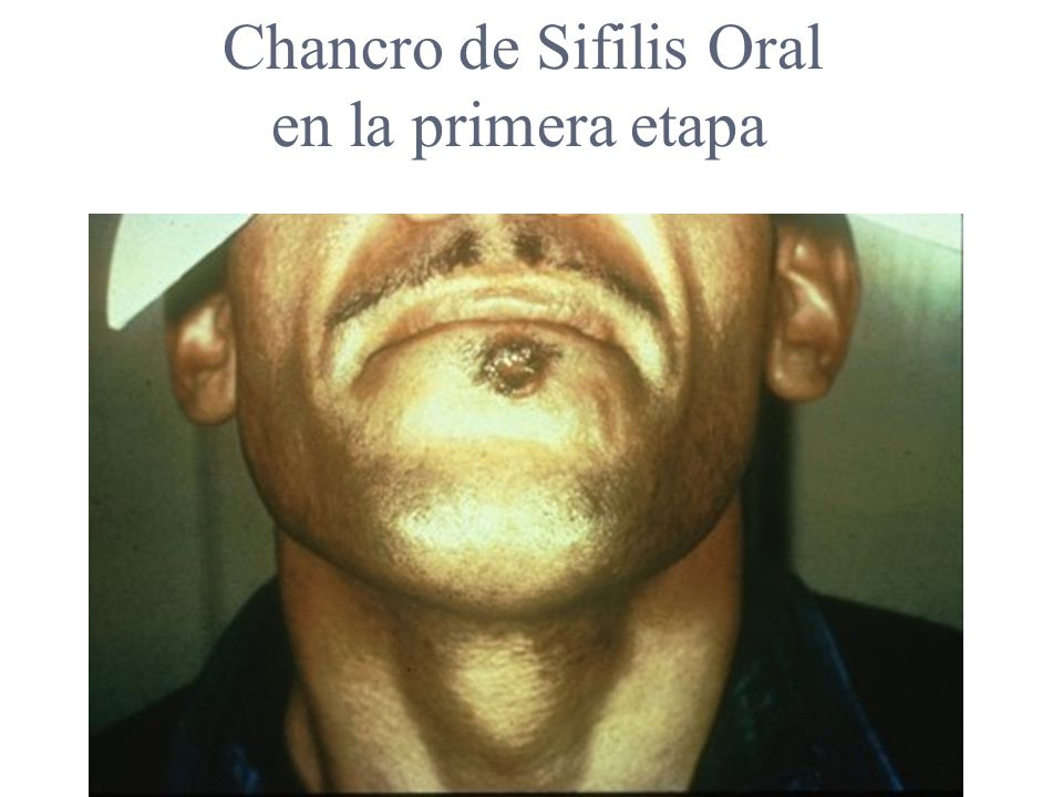 Chancro de Sifilis Oral