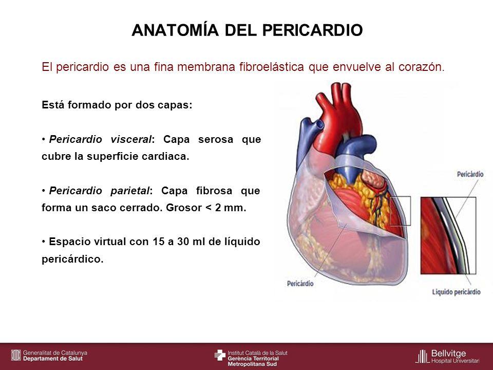 Taponamiento cardiaco Pericardiocentesis - ppt descargar
