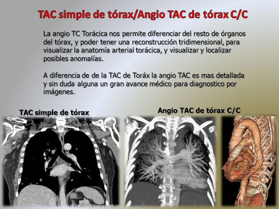 TC de Tórax TC de Tórax TC de Tórax. - ppt descargar