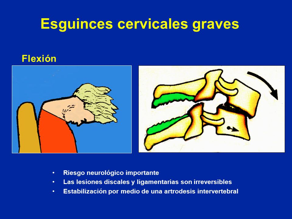 Esguinces cervicales graves