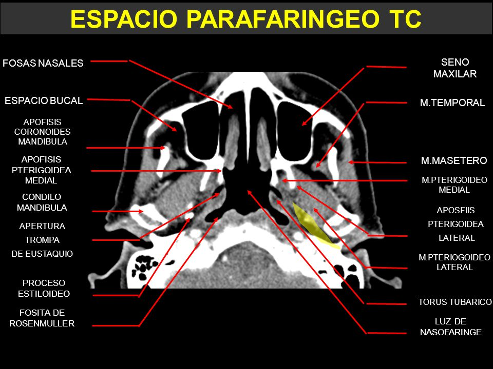 ESPACIO PARAFARINGEO. - ppt video online descargar