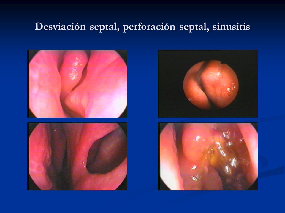 Desviación septal, perforación septal, sinusitis