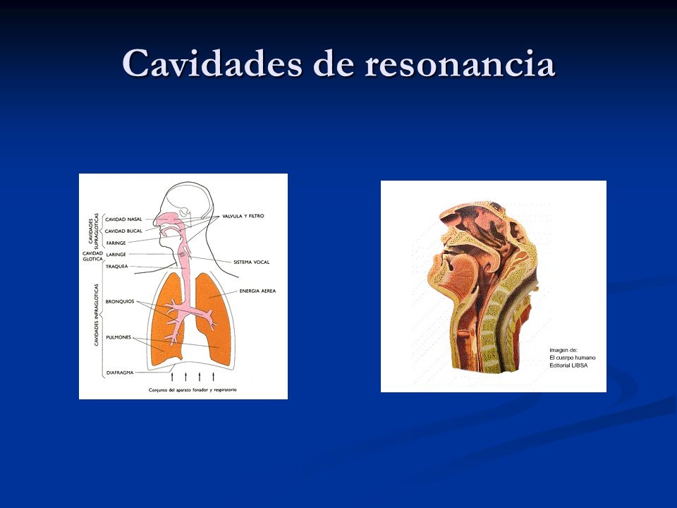 Cavidades de resonancia