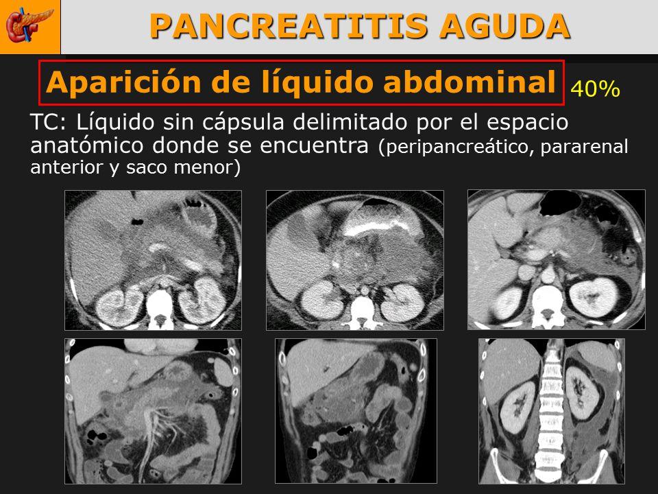 PANCREATITIS AGUDA Maria José Prieto ppt video online descargar