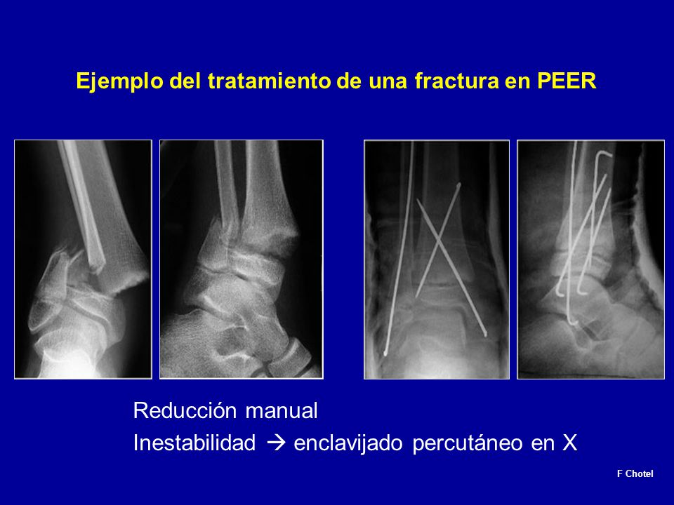 Fracturas en la Infancia - ppt video online descargar