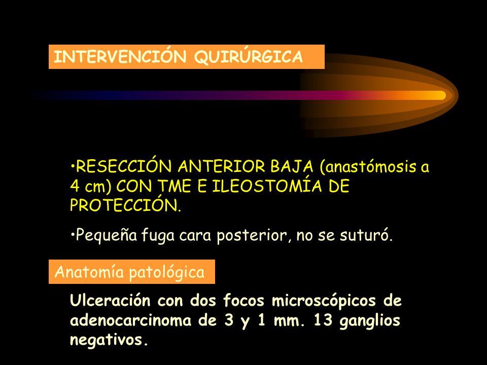 COMPLICACIONES DE ANASTOMOSIS COLORRECTALES - ppt descargar