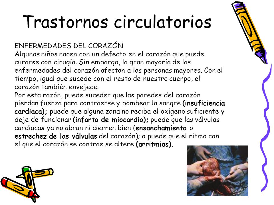 Trastornos circulatorios