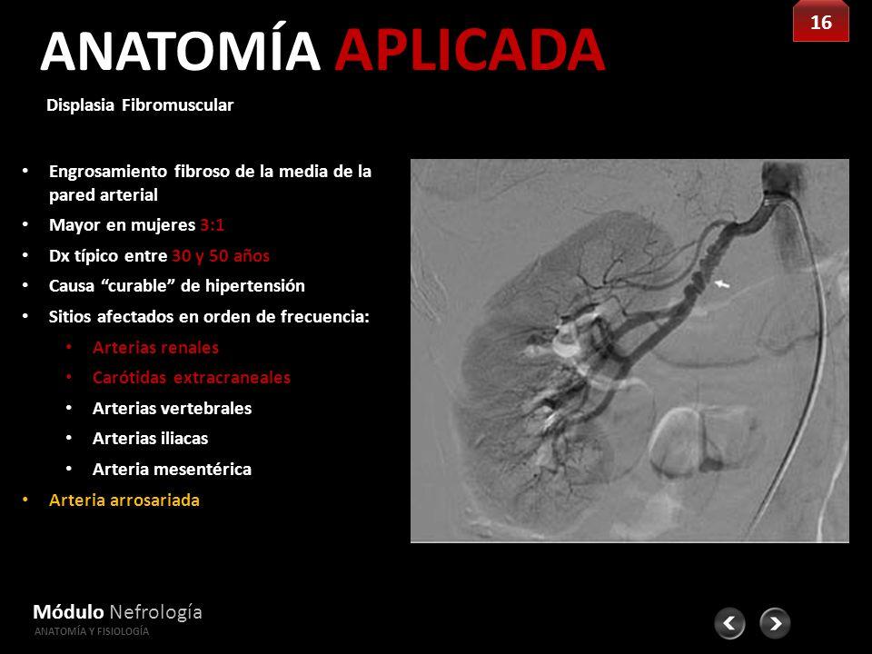 Fantástico Anatomía Arterias Extracraneales Componente - Anatomía de ...