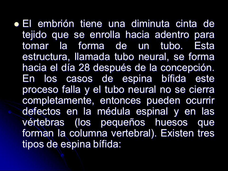ESPINA BÍFIDA MIELOMENINGOCELE - ppt video online descargar