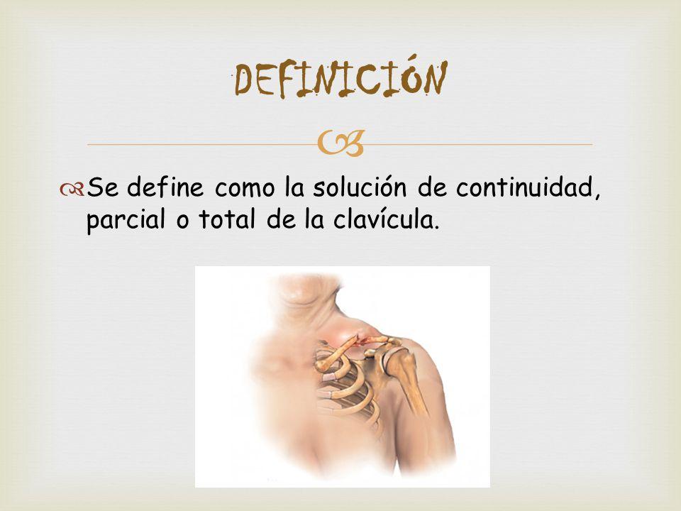 2 DEFINICIÓN Se define como la solución de continuidad e4177110947e