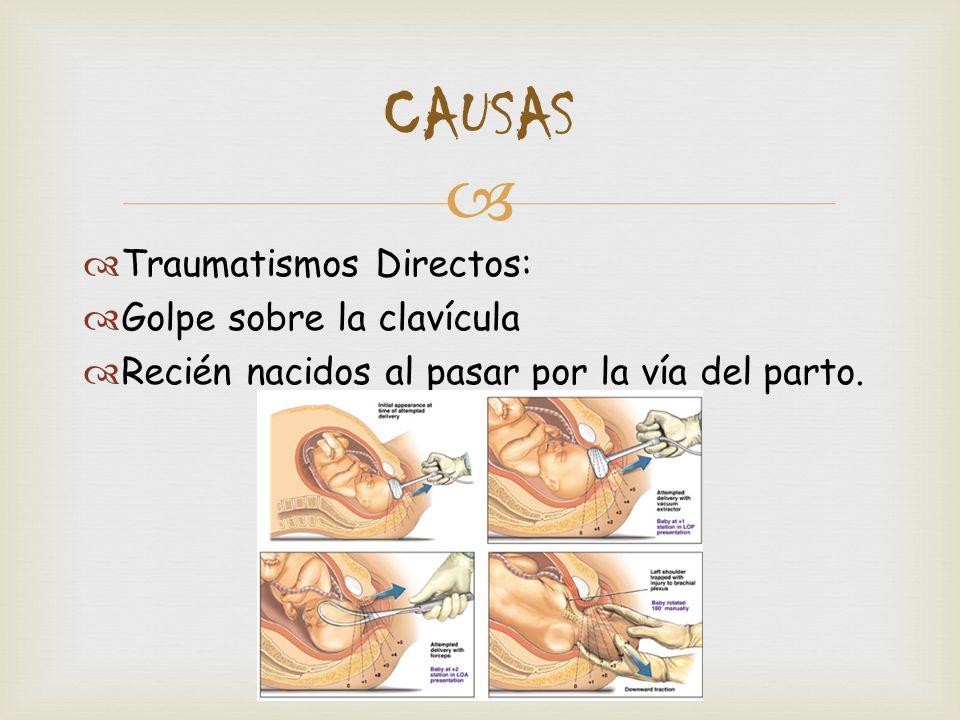 CAUSAS Traumatismos Directos  Golpe sobre la clavícula 5df3bc394a93
