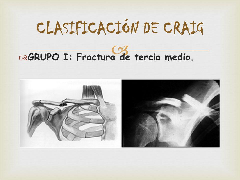 FRACTURA DE CLAVÍCULA. - ppt descargar e7677ae3d9a8