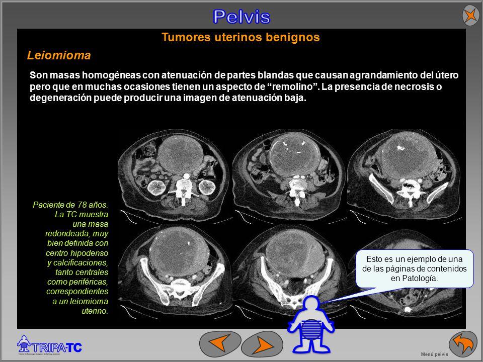 TRIPA-TC: un tutorial de TC abdominopélvica para residentes - ppt ...