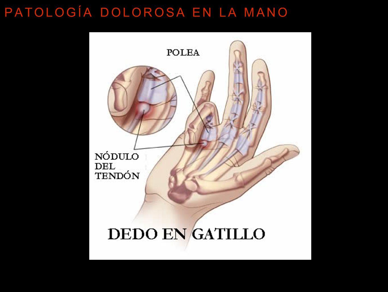 Patología dolorosa en la mano - ppt video online descargar