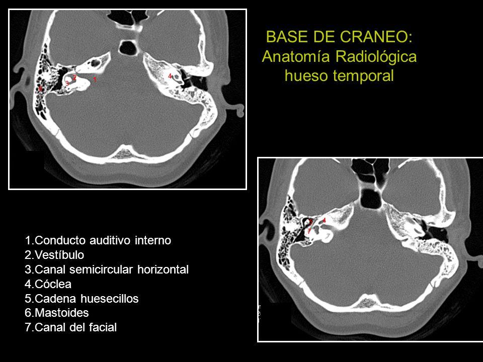 Puntos a tener en cuenta ante una lesión en la base del cráneo ...