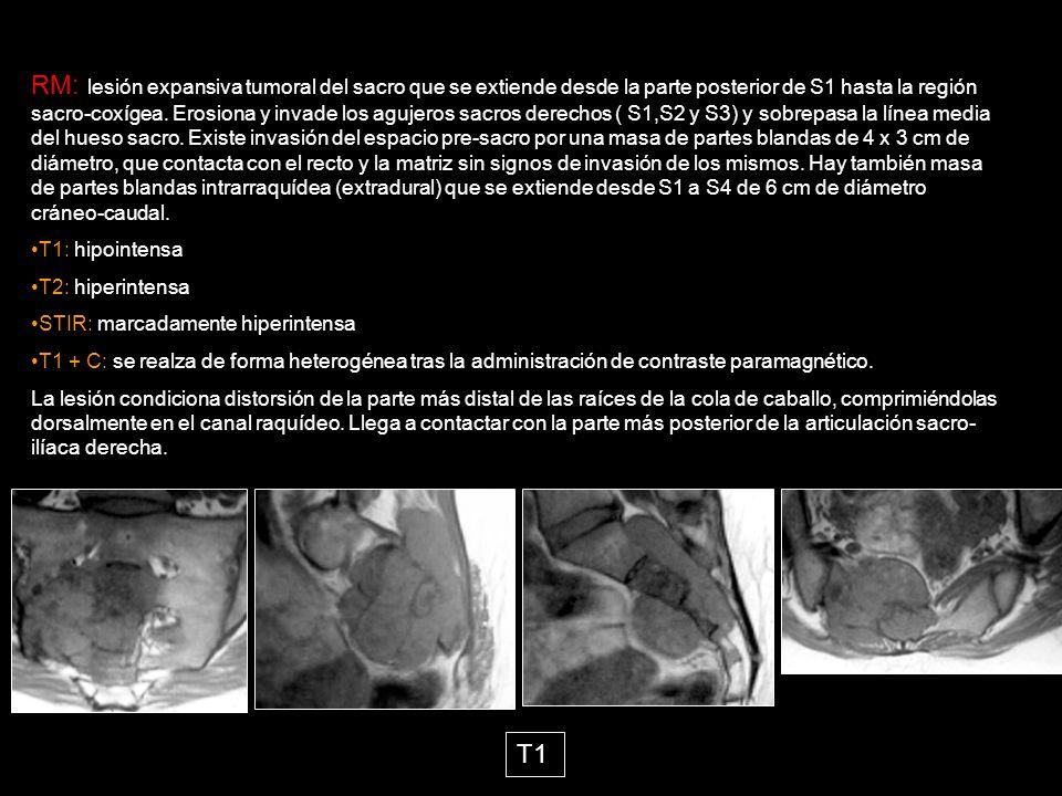RM: lesión expansiva tumoral del sacro que se extiende desde la ...