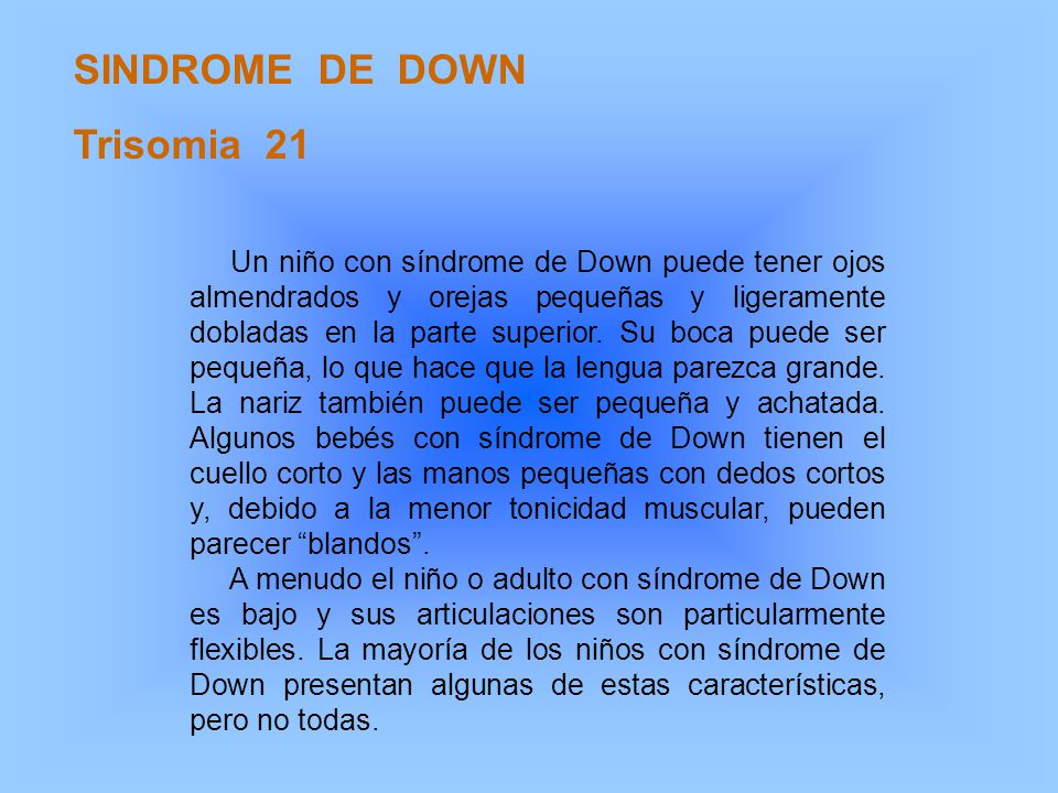SINDROME DE DOWN Trisomia 21