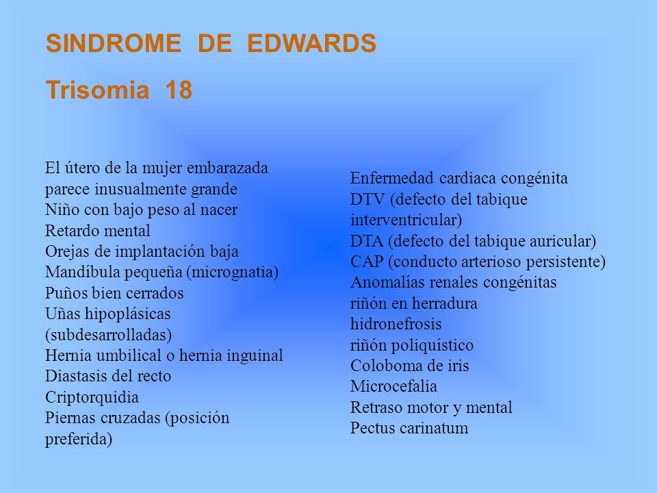 SINDROME DE EDWARDS Trisomia 18