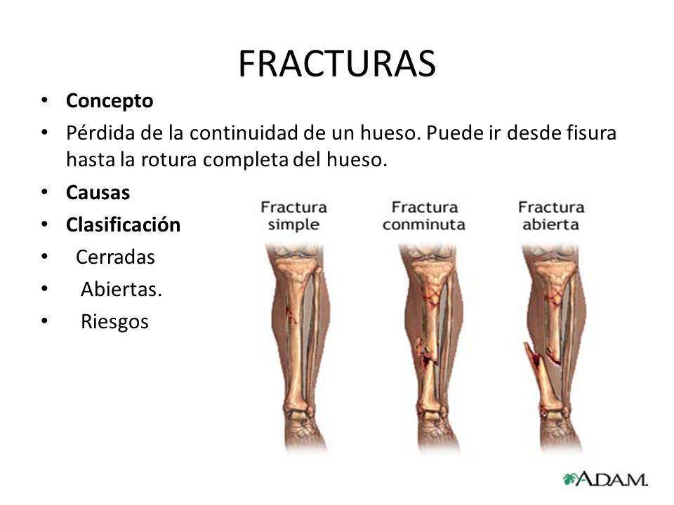 Vistoso Definición De Fisura En La Anatomía Festooning - Imágenes de ...