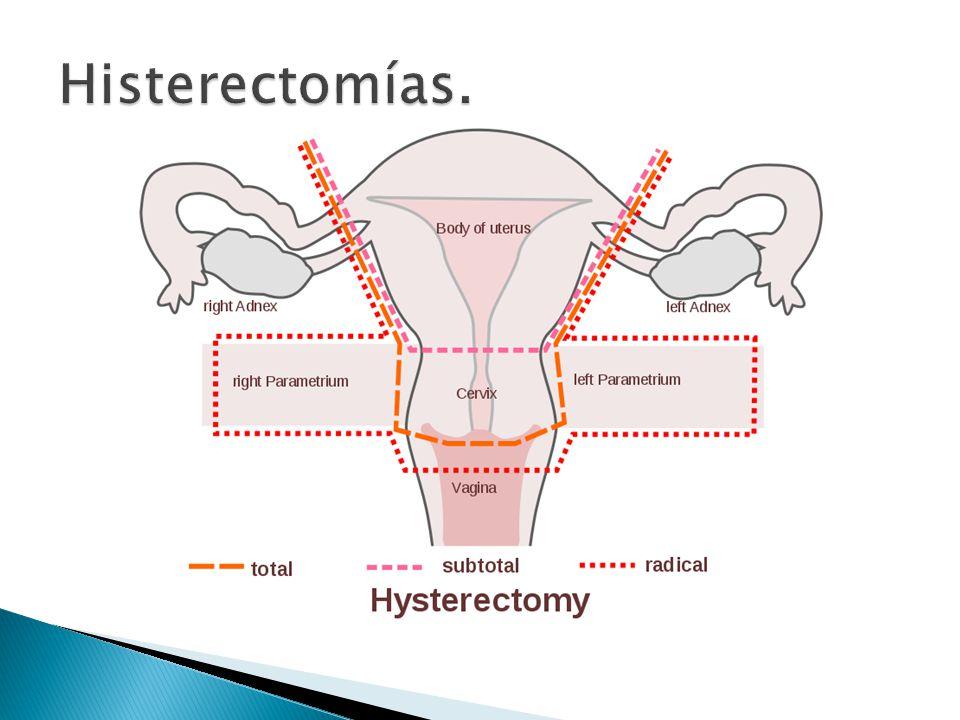 Histerectomías Excenteración pélvica - ppt descargar