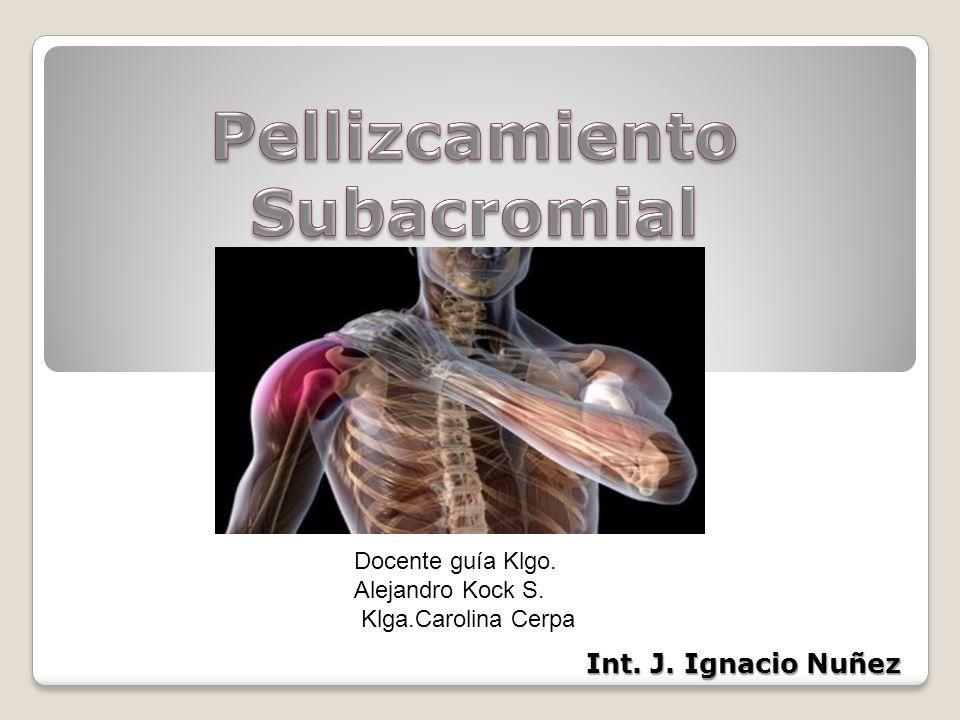 Pellizcamiento Subacromial - ppt descargar
