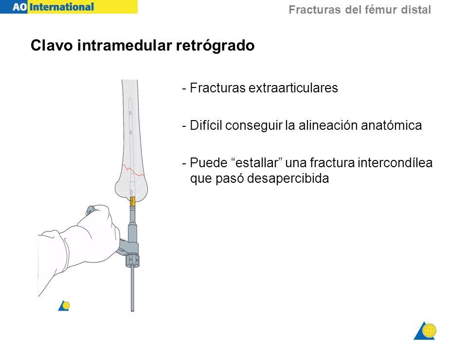 Fracturas del fémur distal - ppt video online descargar