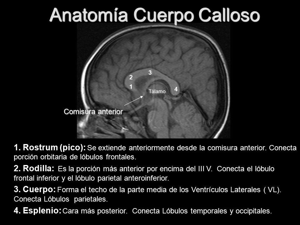 Anomalías Cuerpo Calloso - ppt video online descargar