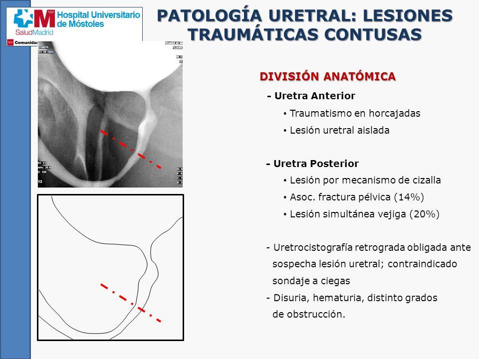 Uretrografía retrograda: revisión de la patología uretral frecuente ...