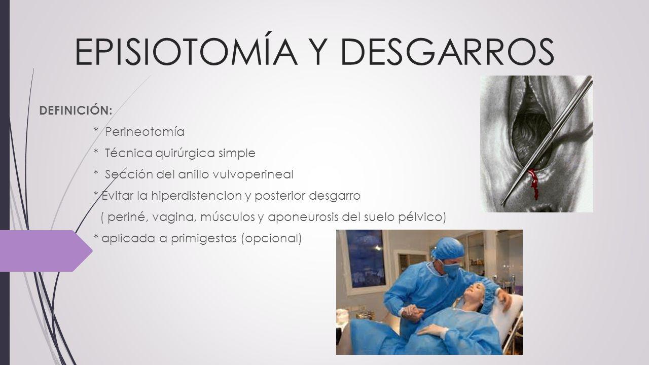 EPISIOTOMÍA Y DESGARROS - ppt video online descargar