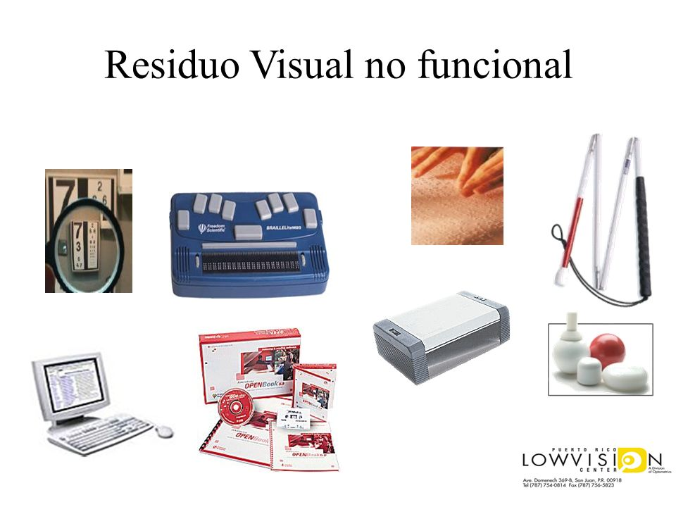 Residuo Visual no funcional