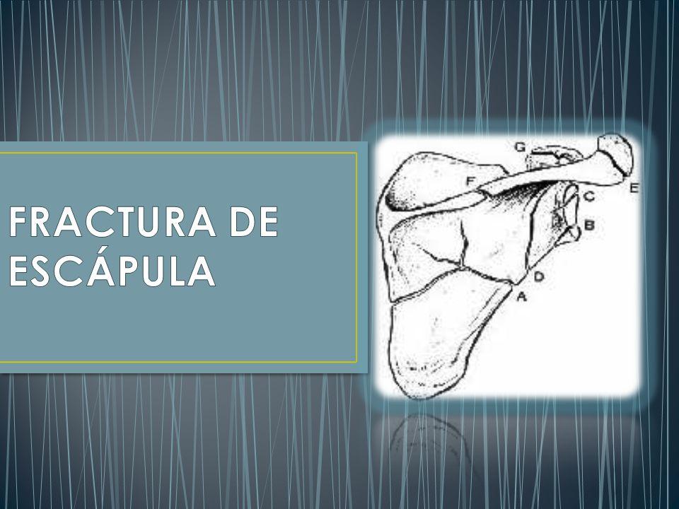 FRACTURA DE ESCÁPULA. - ppt descargar 1d8f064ab47f