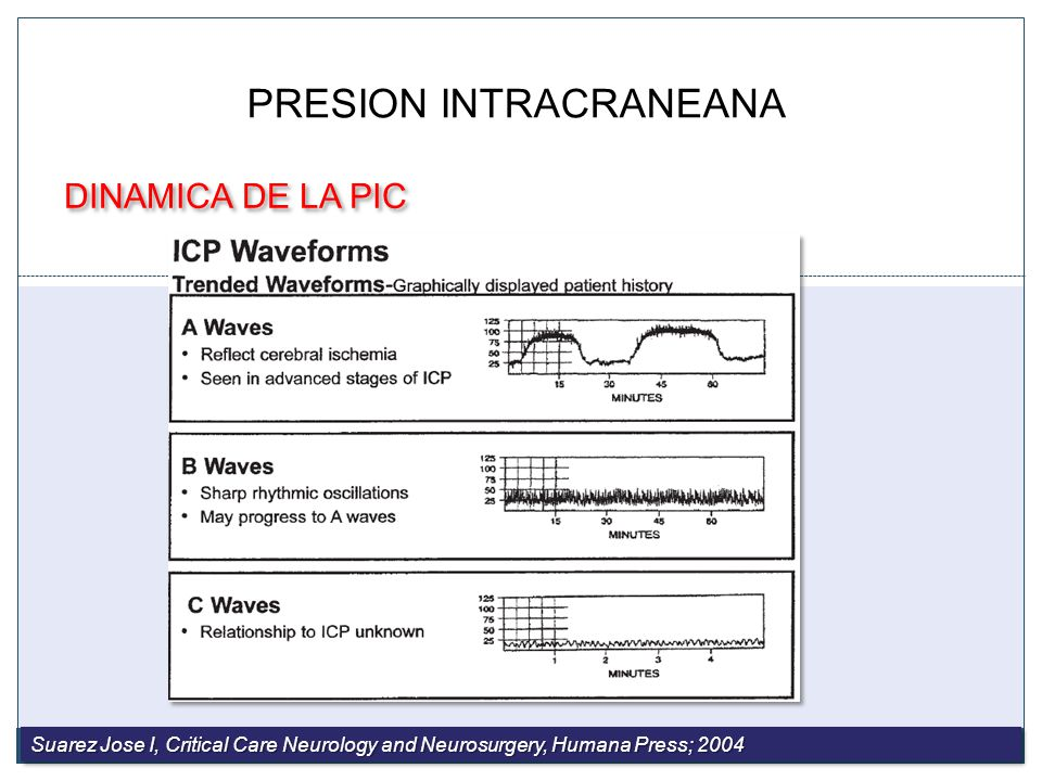 Formas de onda intracraneales