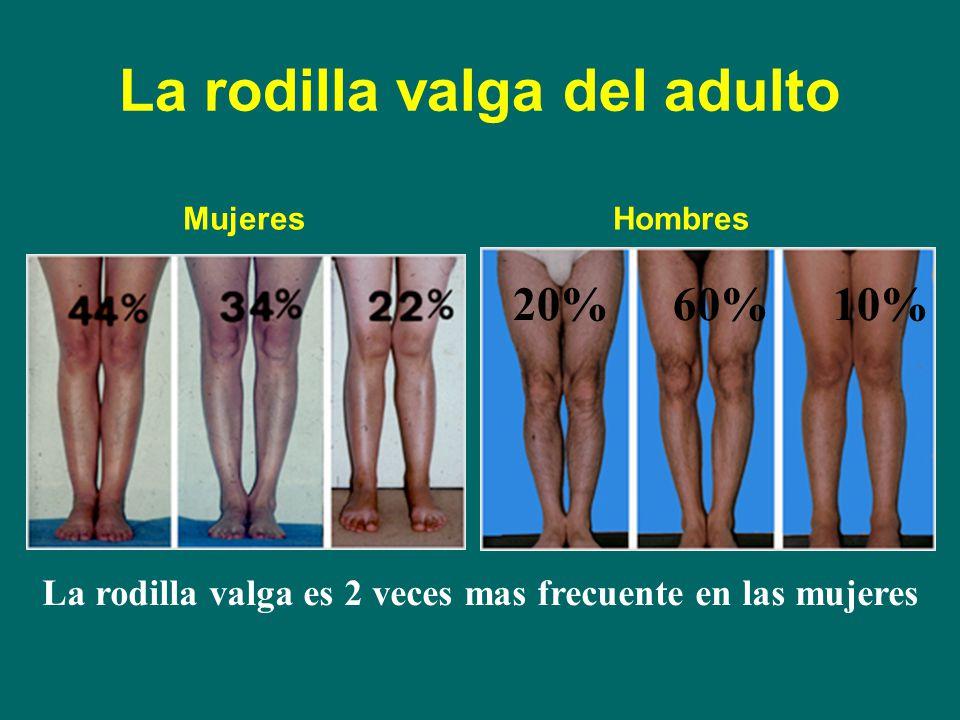 Ejercicios Para Corregir Rodillas Valgas Genu Valgo Síntomas Y Tratamiento