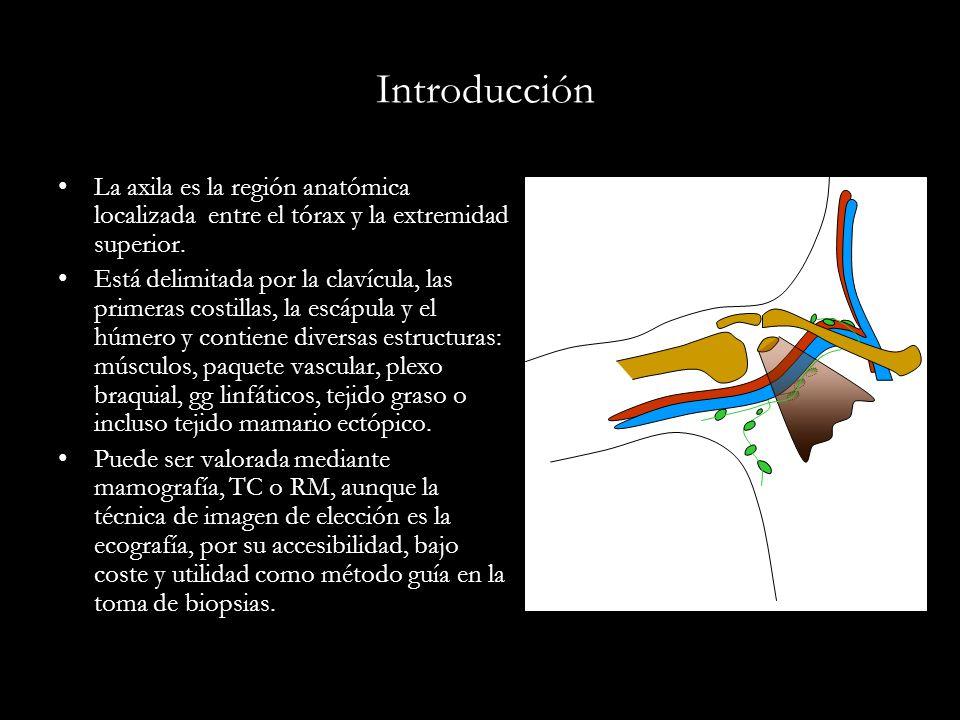 Estudio de la axila en una sección de mama - ppt video online descargar