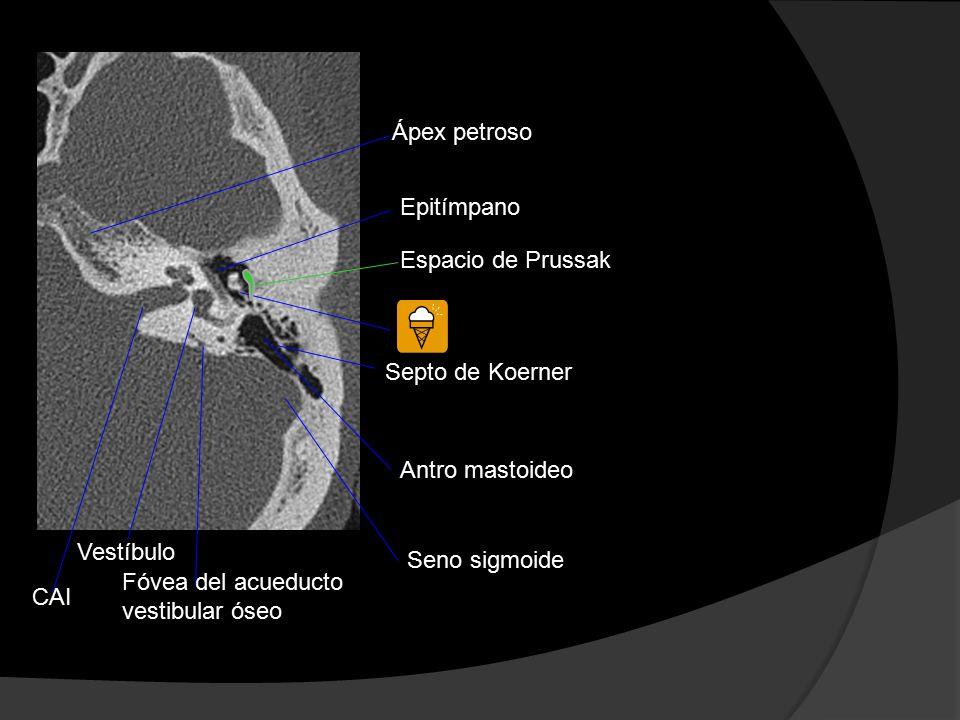 Atlas anatómico del hueso temporal - ppt video online descargar