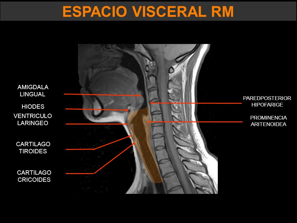 ESPACIO VISCERAL. - ppt video online descargar