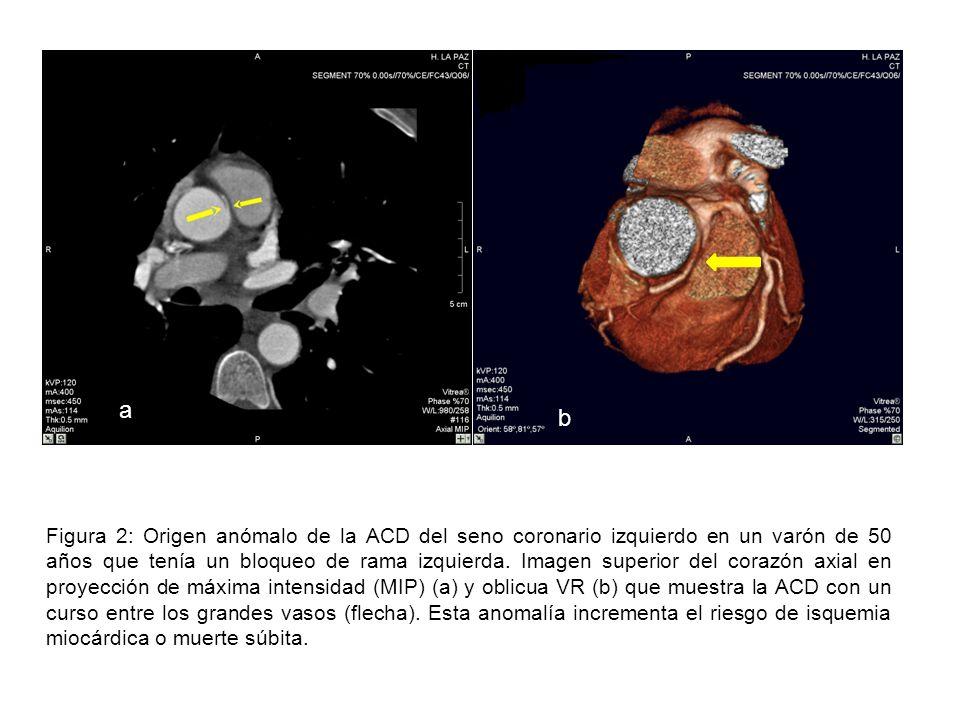 A b c * + Figura 1: anatomía de las arterias coronarias en un cardio ...