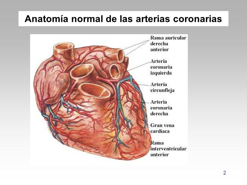Famoso Anatomía De La Arteria Coronaria Normal Colección - Imágenes ...