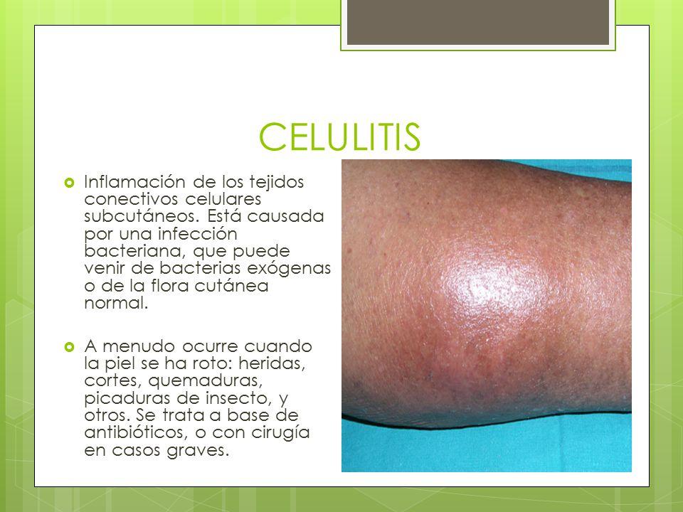 En celulitis cara inflamacion la
