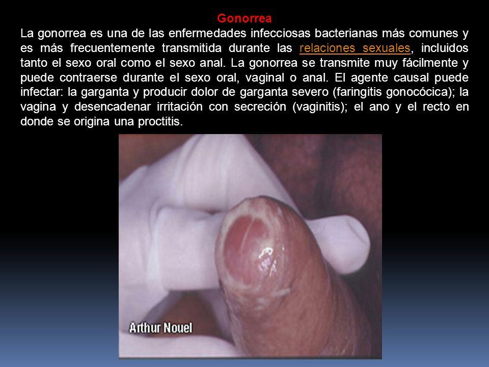Emfermedades del sexo anal pics