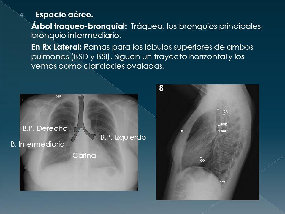 RADIOLOGÍA TORÁCICA Irati Larraza R1 MFyC. - ppt video online descargar