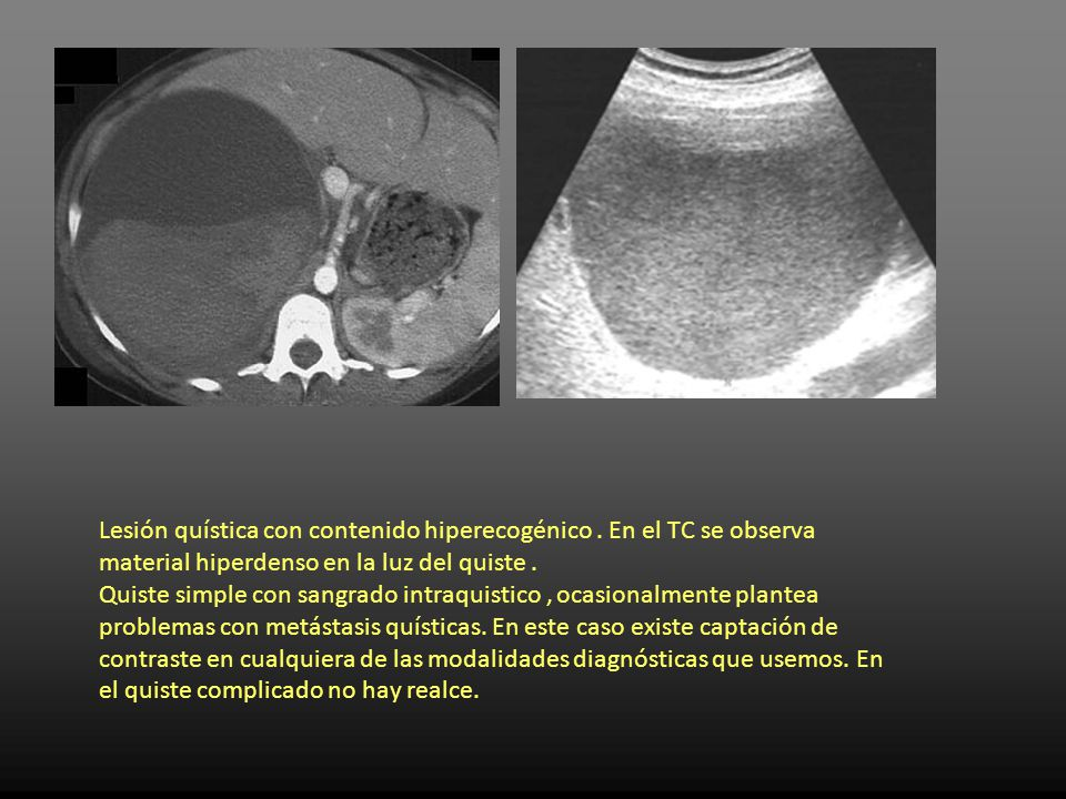 Quiste hepatico simple complicado